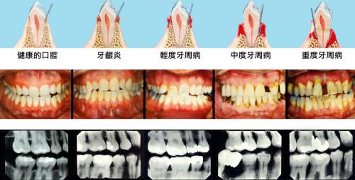 8月5日小米有品众筹!素诺智能可视冲牙器C3 pro倒计时海报曝光